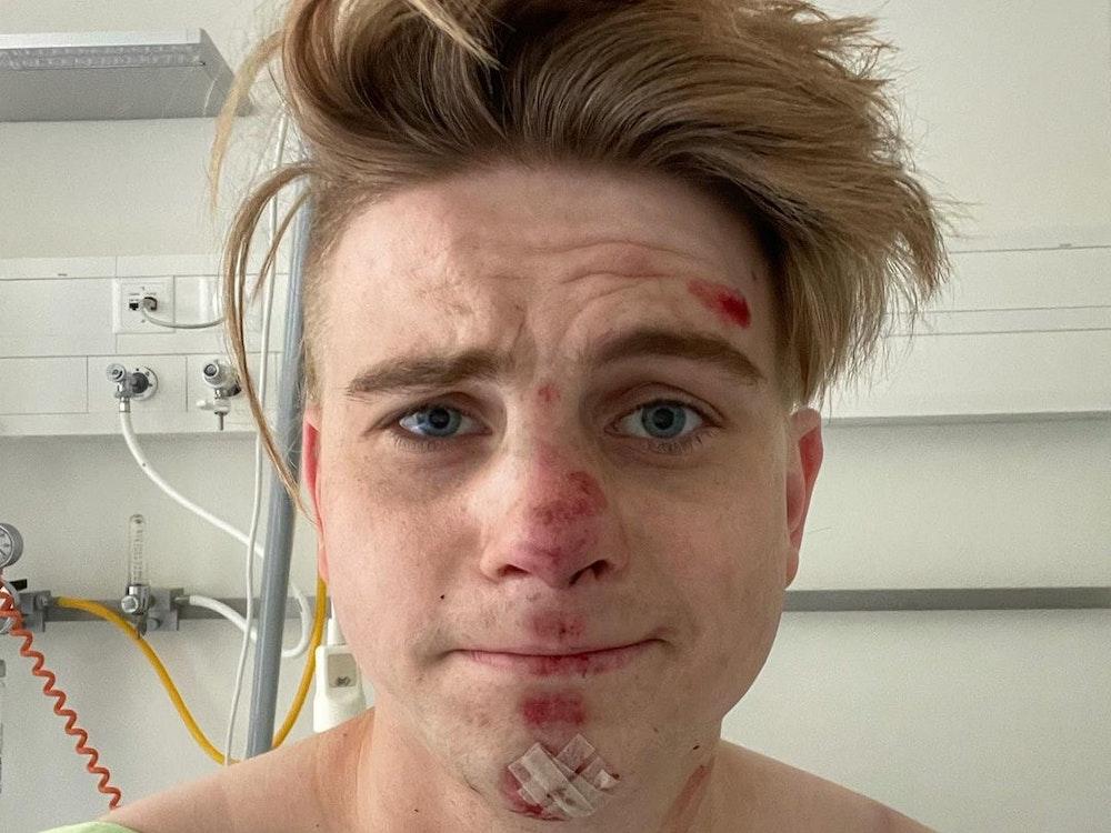 Vincent Gross im Krankenhaus mit Schürfwunden im Gesicht