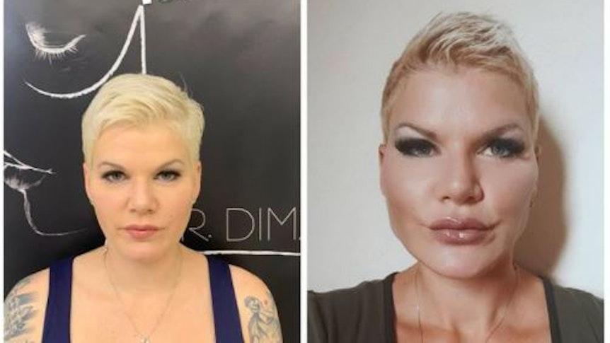 20. Juli 2021: Melanie Müller hat dieses Foto in ihrer Instagram-Story gepostet. Es zeigt einen Vorher-Nachher-Vergleich nach ihrem jüngsten Beauty-Eingriff im Gesicht.