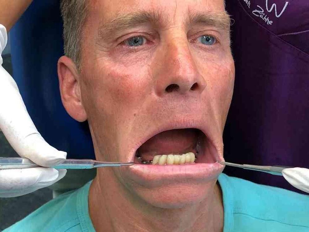 BB-Star Jürgen Milski wird in einer Zahnarztpraxis behandelt.