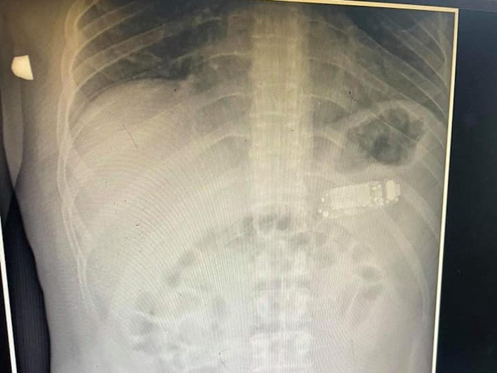 Facebook Skender Telaku am 30.8.2021 Röntgenbild von einem Patienten mit Handy im Magen.