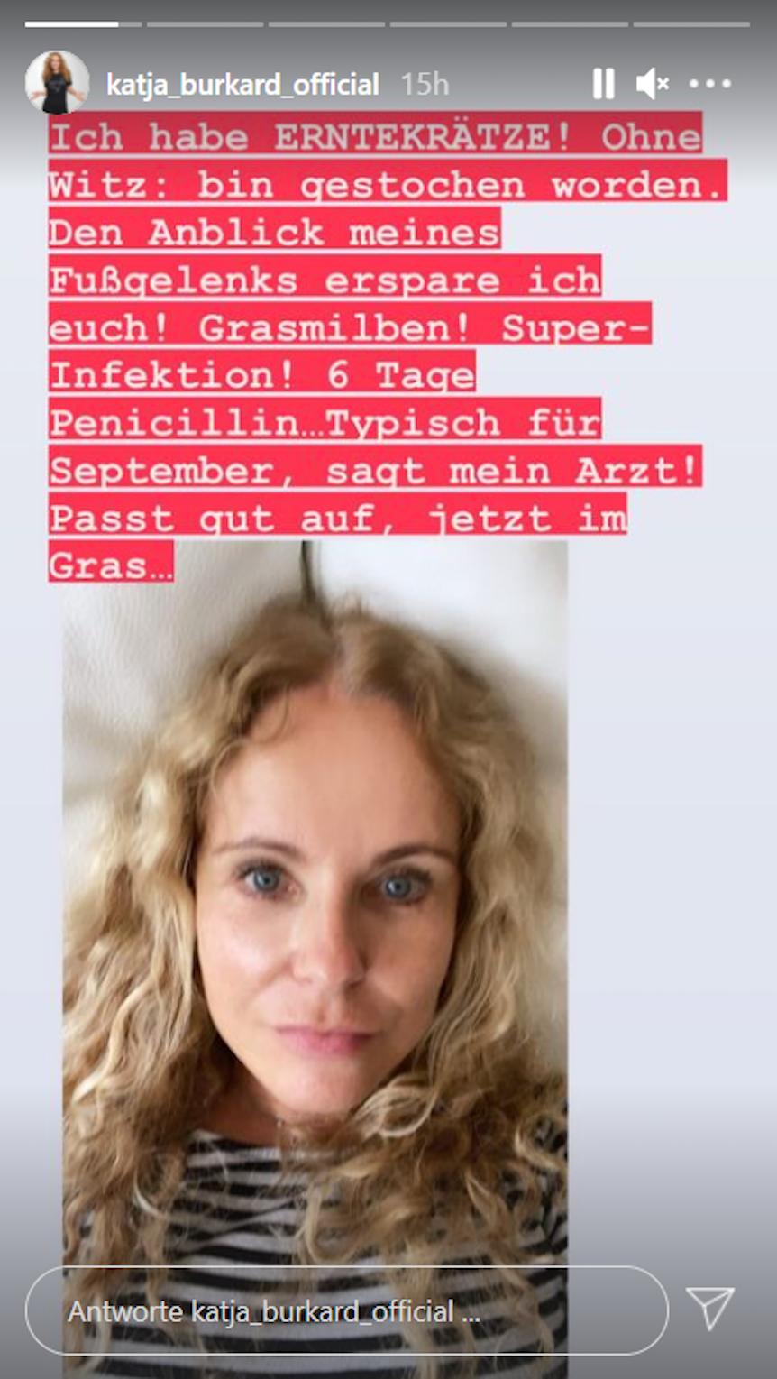In ihrer Instagram-Story warnt die Moderatorin ihre Follower vor den beißenden Milben.