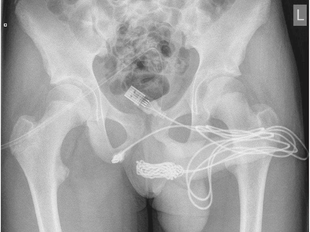 Auf dem Röntgenbild ist deutlich das verknotete USB-Kabel zu sehen, das im Körper des Jugendlichen stecken geblieben war. Der Teenager führte es bei einem fehlgeschlagenen sexuellen Experiment in seinen Penis ein.