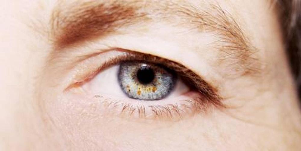 Die überschüssige Haut am Augenlid lässt die Augen kleiner wirken.